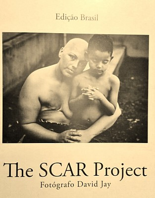 the-scar-project